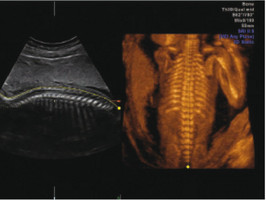 mode osseux, échographie 3D, Toulon